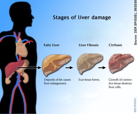 fatty-liver.jpg